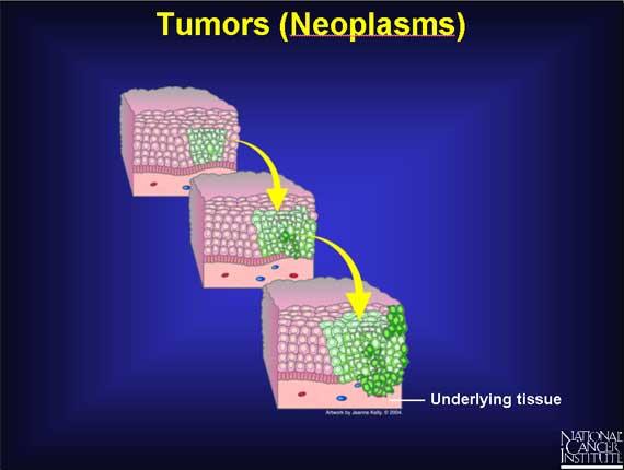 Tumori si bolile tumorale * Generalitati [1]